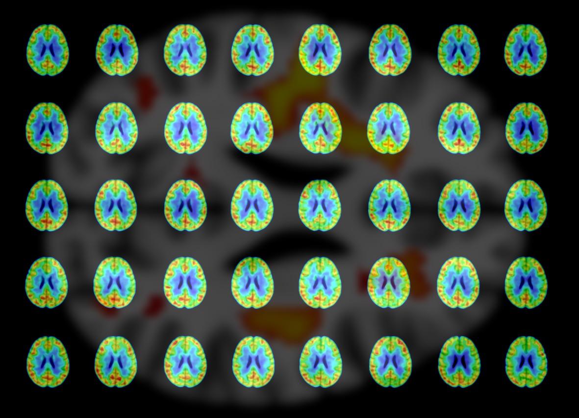 The Epigenetics of Aging: Understanding neurodegeneration at the gene transcription level