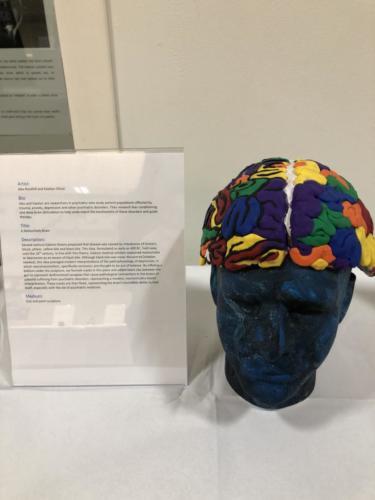 A Meloncholy Brain