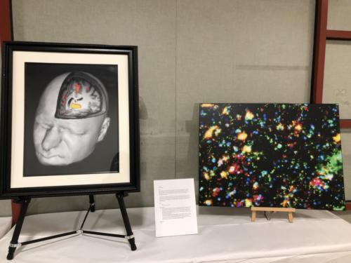 (1) Pain; (2) The human brain galaxy
